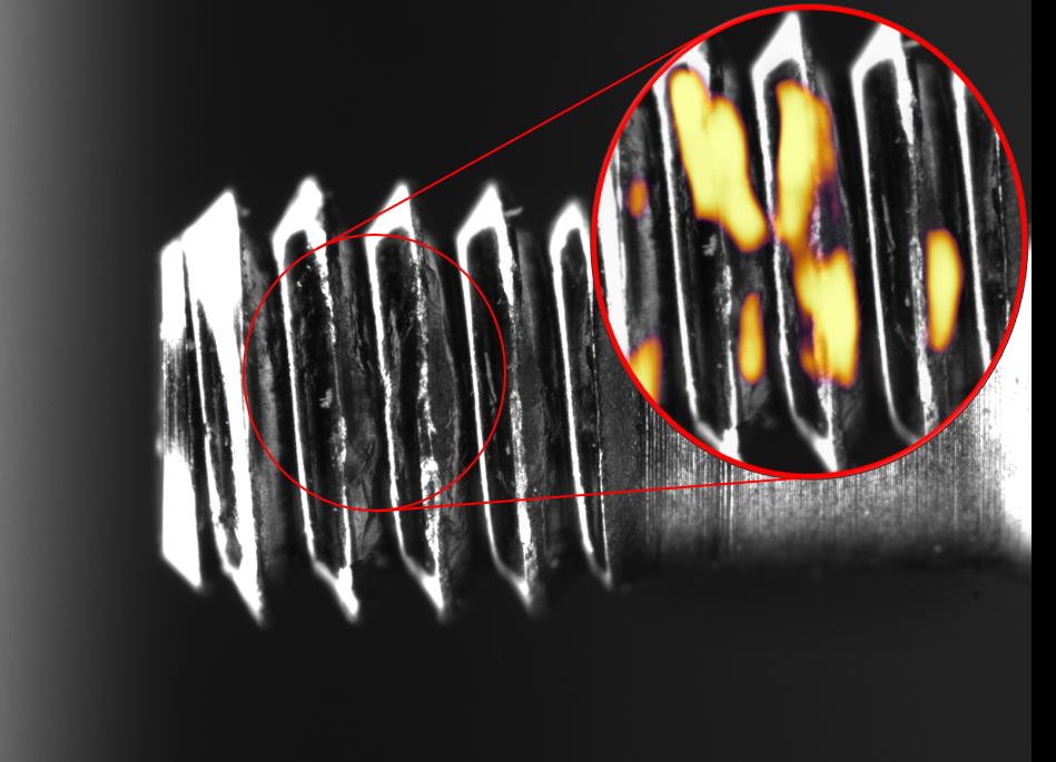 Medical screws inspection