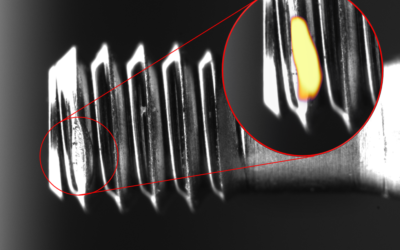 How to Automate Visual Inspection on Surgical Screws with Deep Learning in order to Ensure Perfect Quality